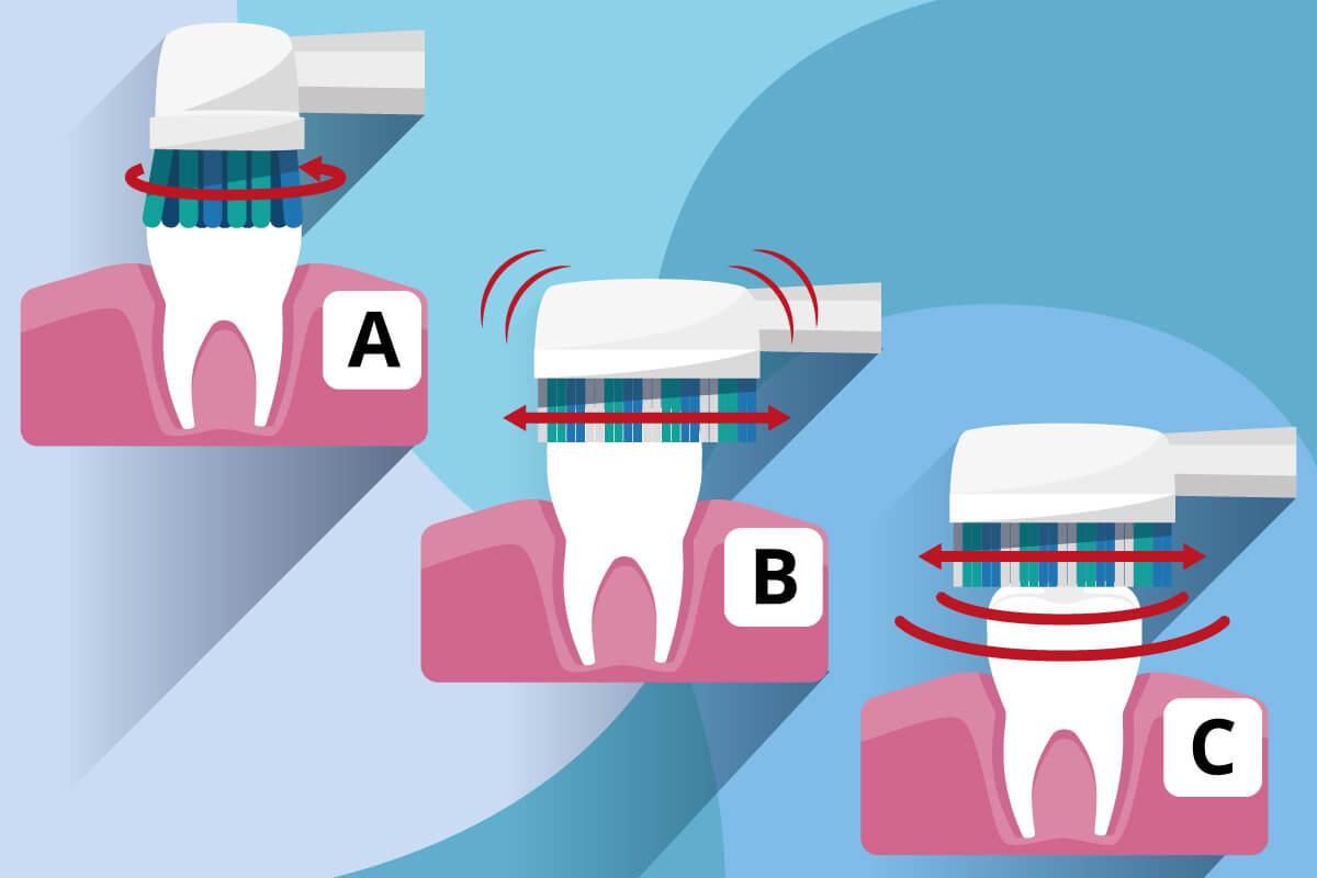 Typen elektrischer Zahnbuersten